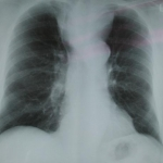 Chest x-ray showing a large retrosternal goitre