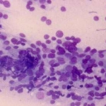A cytological slide of Hashimoto's thyroiditis